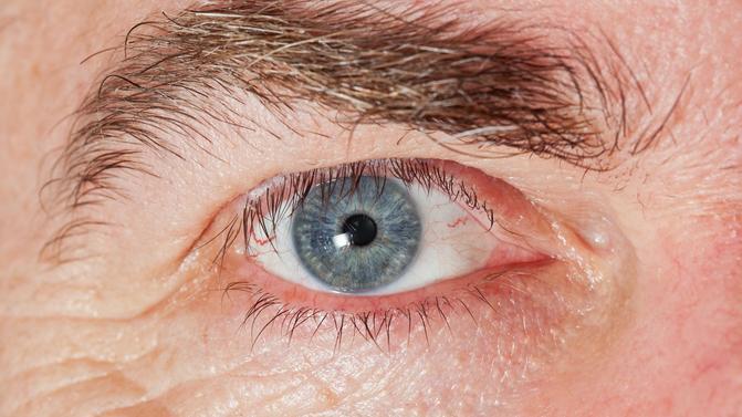 féreg a szemében
