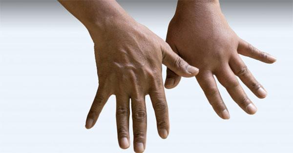 az ujjviszketés kezelése között