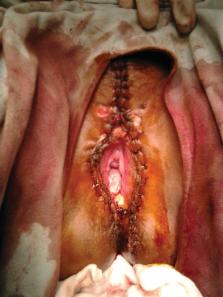 gyógymód mindenféle parazita ellen A levomekol segített a nemi szemölcsök kezelésében