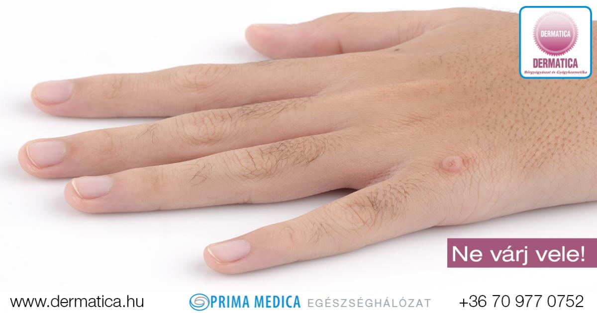 HPV vírus - Humán papilloma vírus | HPV Doktor