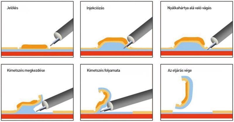 fordított papilloma endoszkópos eltávolítása