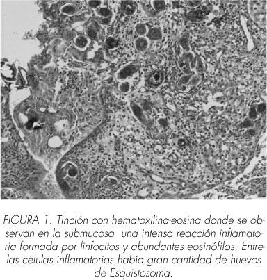 schistosomiasis elimináció)