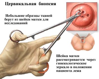 emberi papillomavírus egy mondatban)