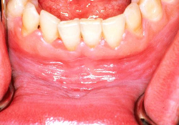 papilloma a száj belsejében papilloma vitus gola