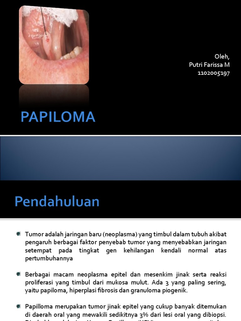 neoplazma papilloma)