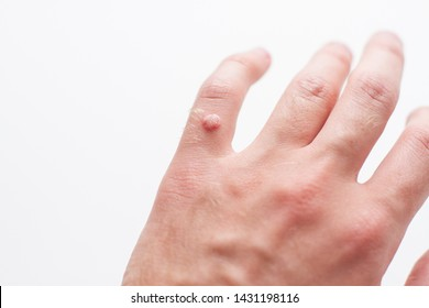 szemölcsök a kezén hívott paraziták elleni gyógyszerek keresése