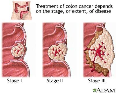A rák típusai