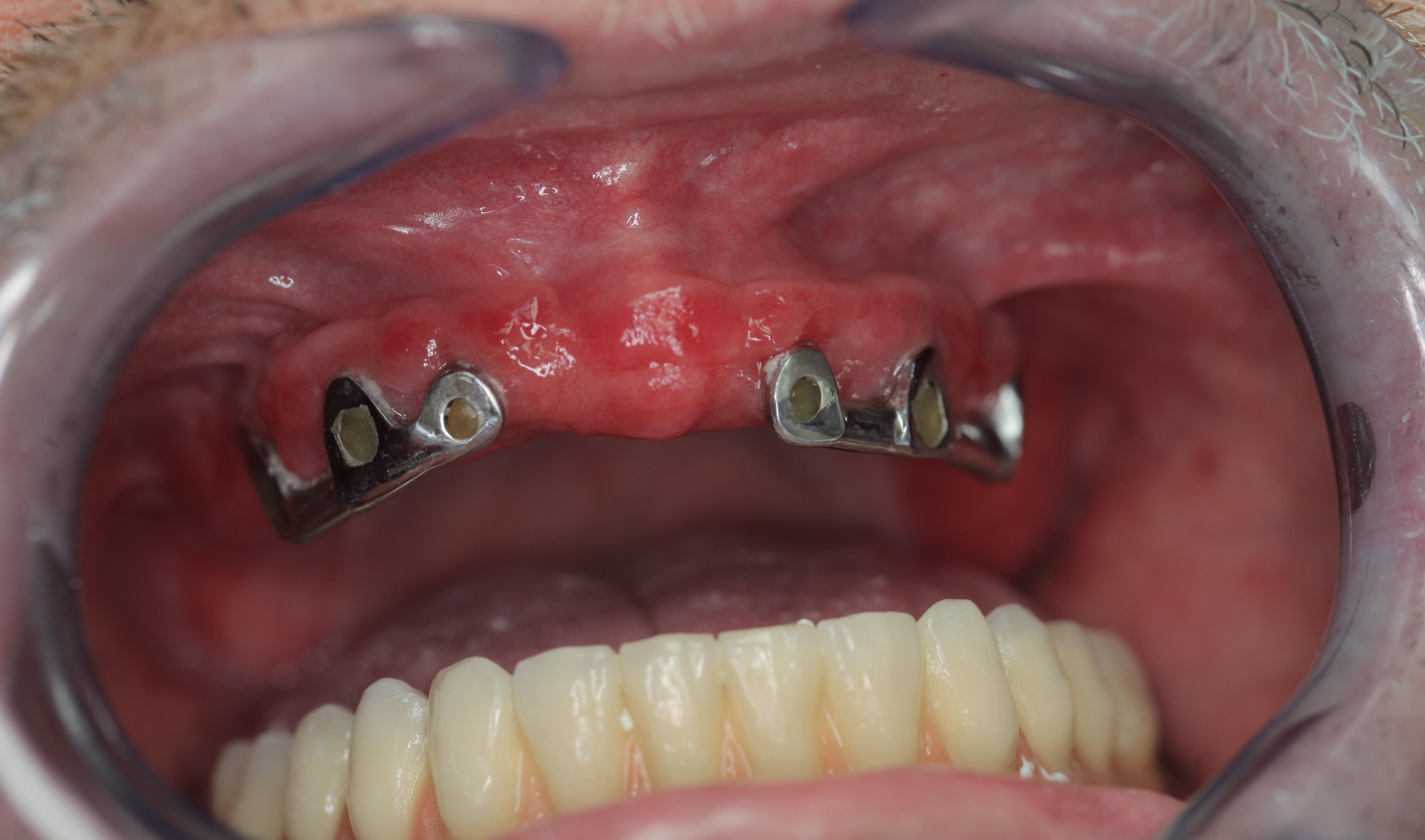 papillómák a száj kezelésében