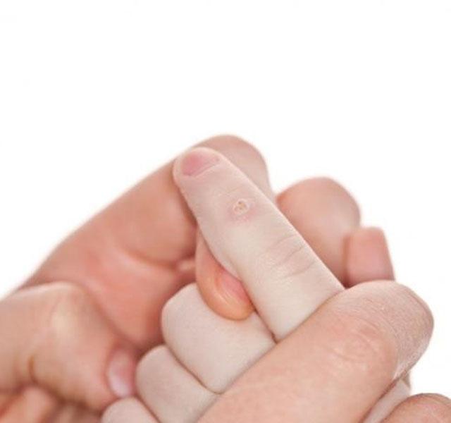 csak egy féreg tabletta a férgek legújabb kiképzése