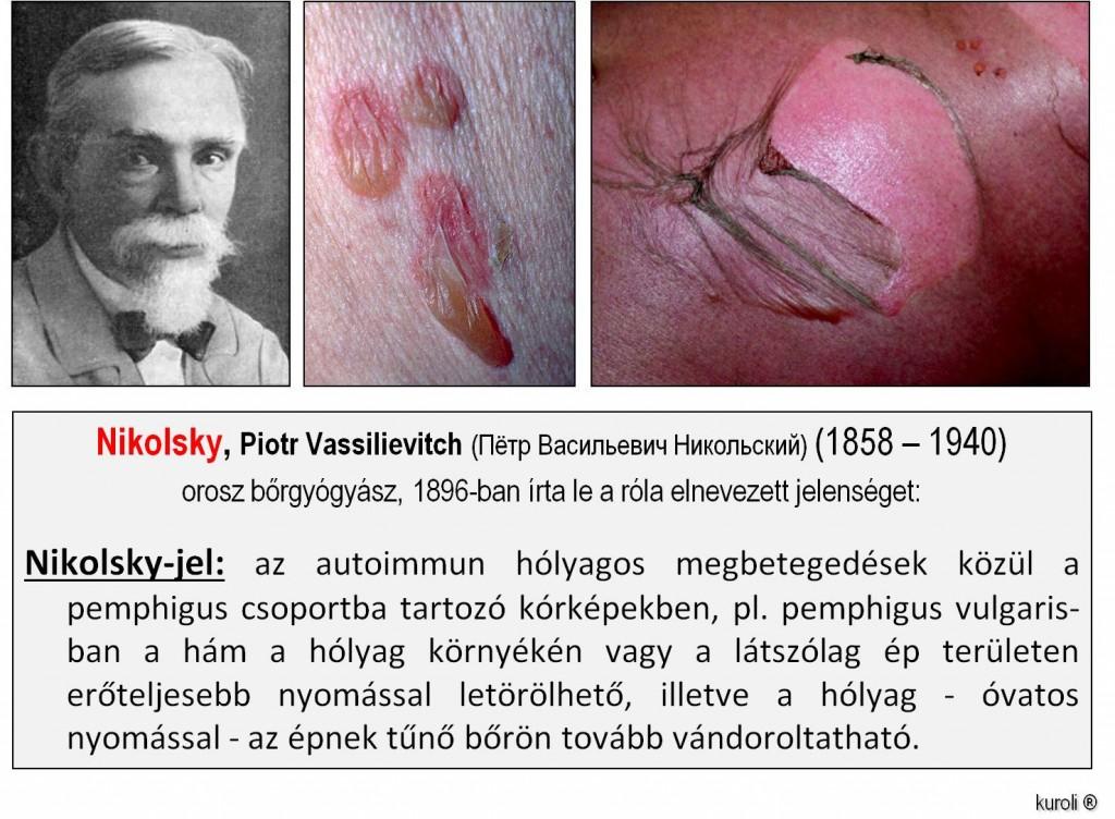 papillomatosis hólyag)