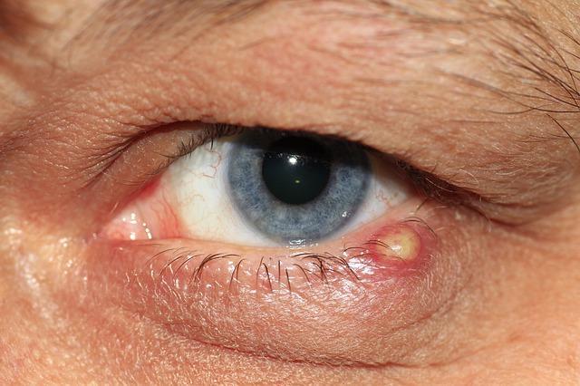 emberi papillomavírus a szemben)