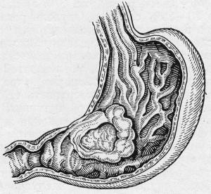 a gyomor antrum rákja)