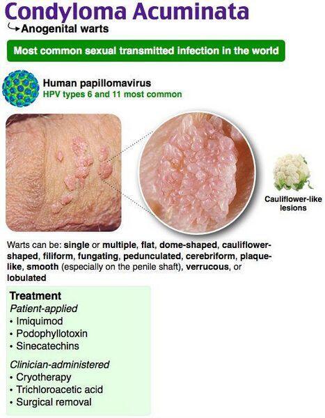 papilloma vírus condyloma)