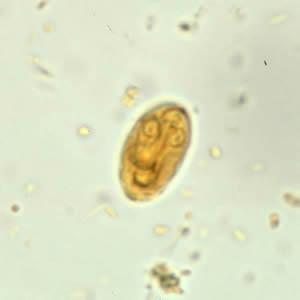 Anticorpi giardia synévo - Méregtelenítésre kerülnek. Méregtelenítés otthon