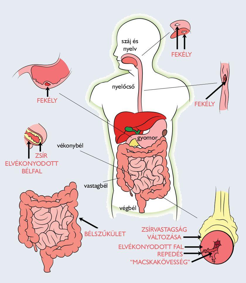 paraziták az emberi test gyógyszeres kezelésében