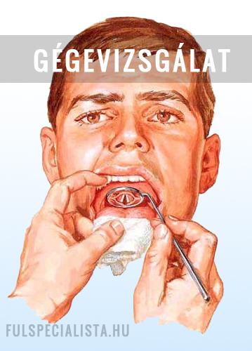 tünetek a genitális szemölcsök eltávolítása után