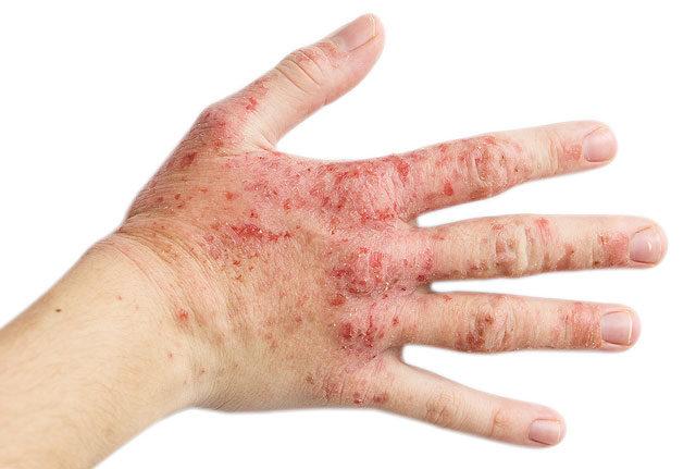 a vesék tisztítása a parazitáktól hpv herpesz különbség