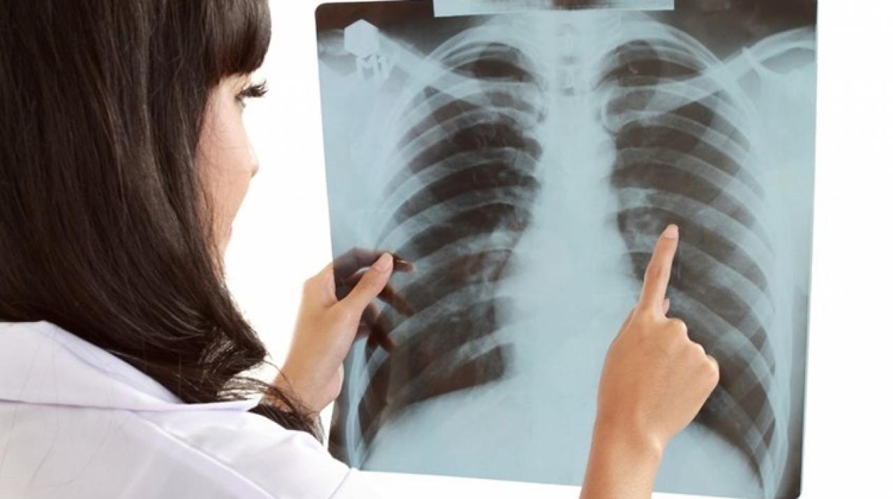 A tüdőrák kezelési lehetőségei   ifal60.hu