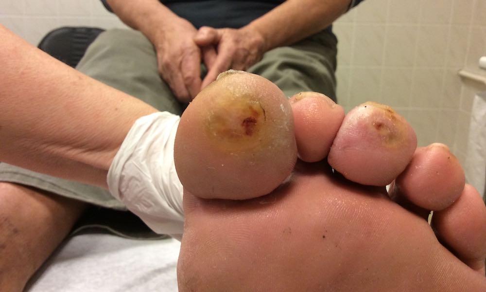 P. Dávid: 5 éve fennálló sebek mindkét láb ujjainak talpi felszínén — Istenhegyi Klinika