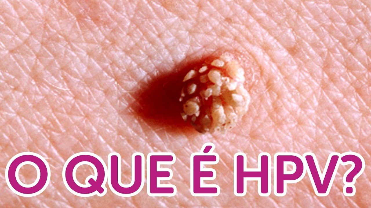 zwanger hpv vírussal)
