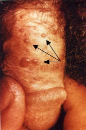 giardiasisos foltok a testen családi rákközpont monash