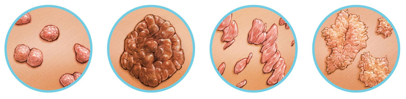 genitális szemölcsök és mandulagyulladás