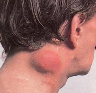 rák hodgkin kezelés