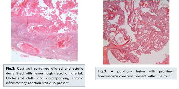 multiplex intraductalis papillomatosis
