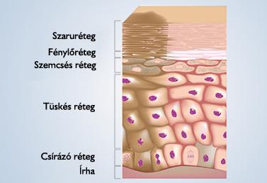 hogyan lehet enterobiosist elhozni a gyermeknél vörös paraziták a székletben