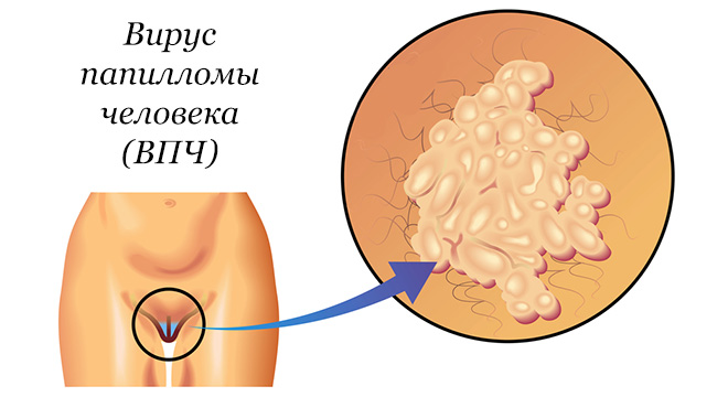 condyloma proteflazid)