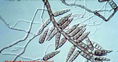 helminthosporium oryzae adalah)