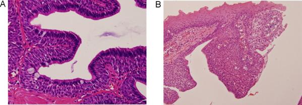 intraductalis papilloma a mellekben