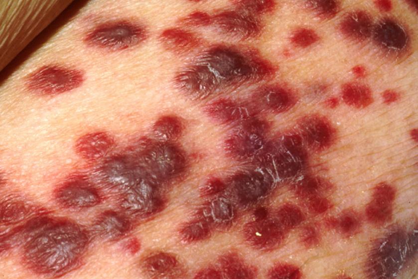szarkóma bőrrák