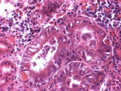 Metazoan paraziták példák - ifal60.hu