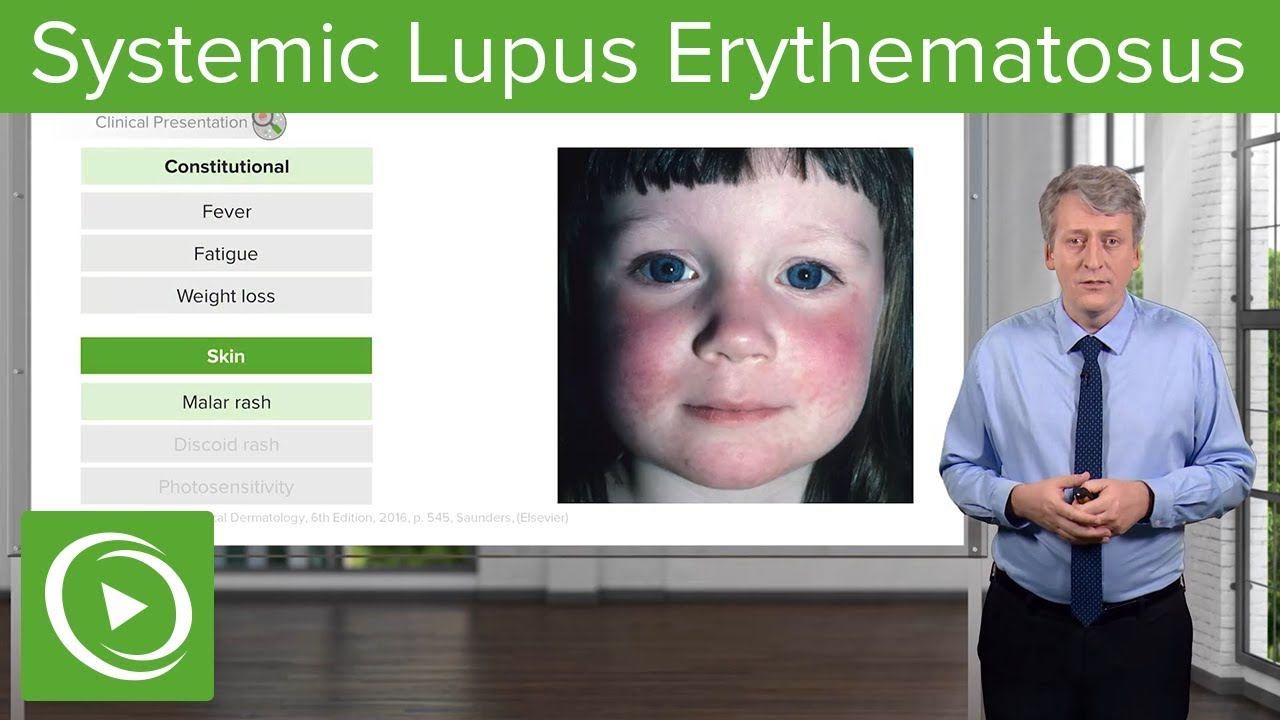 Helmintikus terápia lupus - ifal60.hu