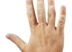 hpv warzen an der kéz