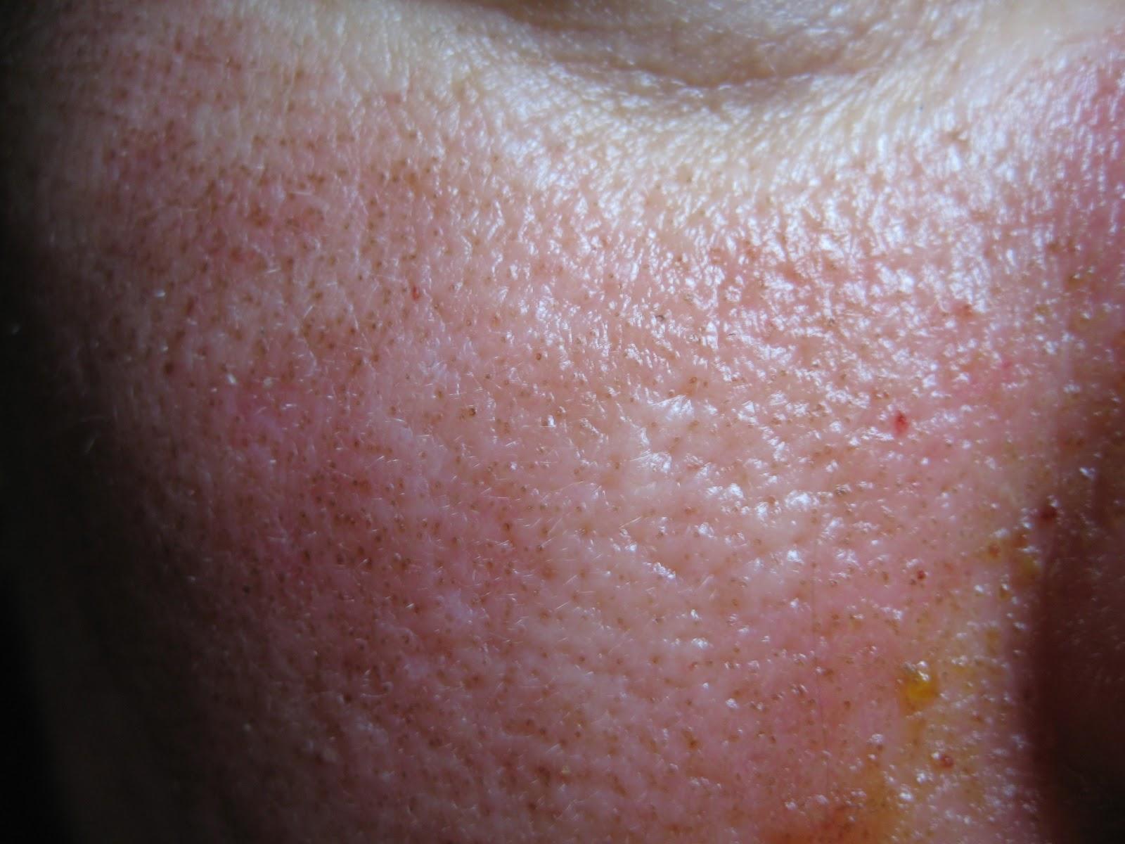az intraductalis papilloma természetes kezelési módjai hpv vírus belirtileri