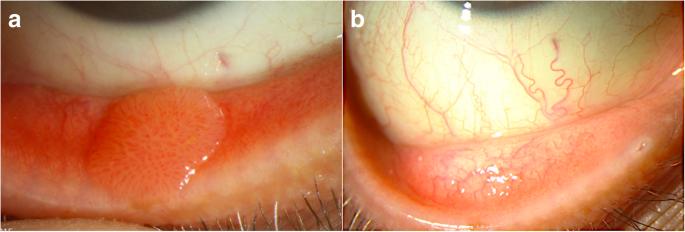 Giardia tratament medicamentos Veziculita si diferenta de prostatita, Papilloma virus szemolcs