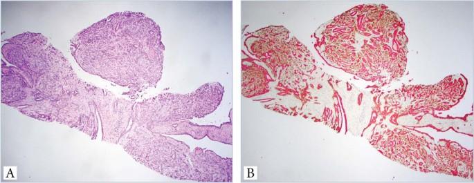 intraductalis papilloma a mellekben)