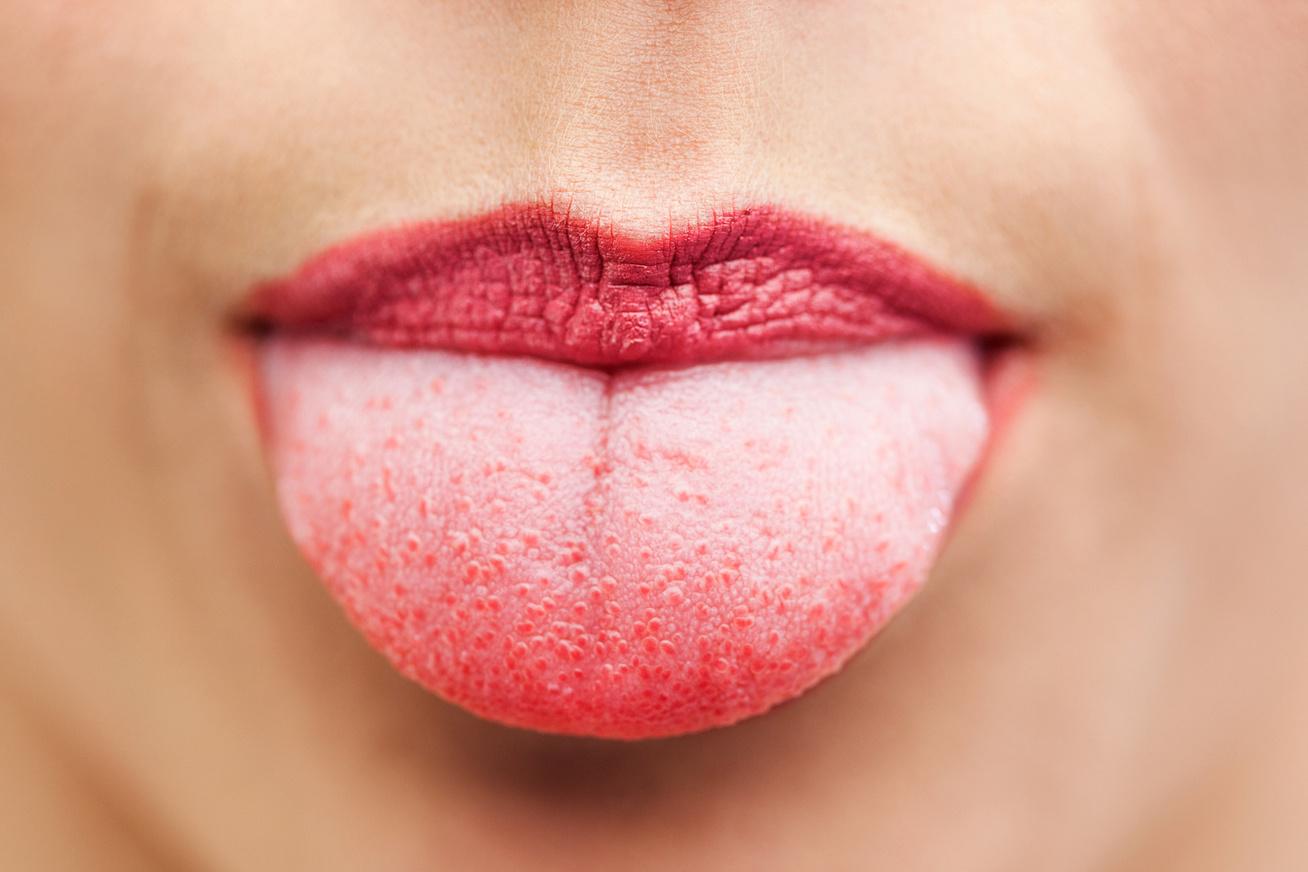 hpv száj, ahogy megnyilvánul emberi papillomavírus fertőzés penyebab