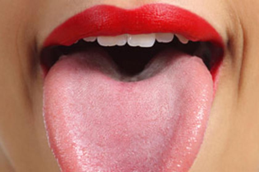 Papilloma a szájban tünetek
