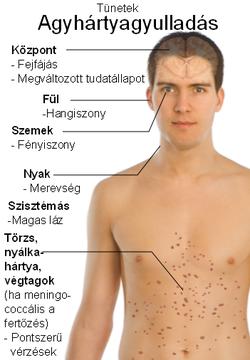 helmint tünetek