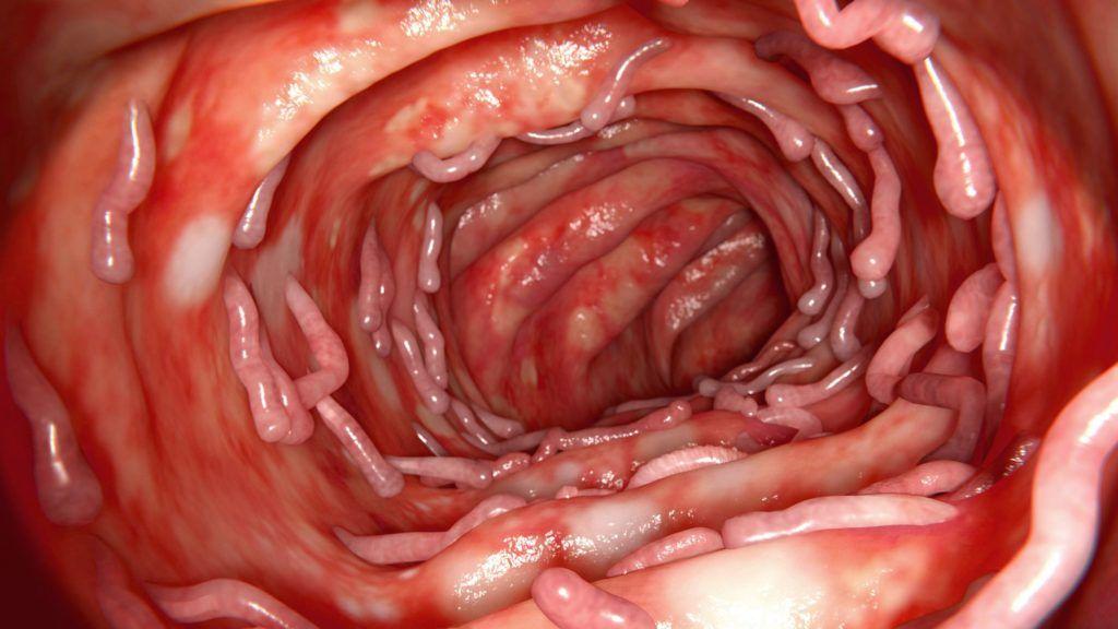 Antihelminthic gyógyszerek az emberekről vélemények Gyógyszer a paraziták mérgező véleményei