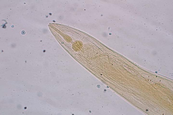 enterobius vermicularis bei kindern)