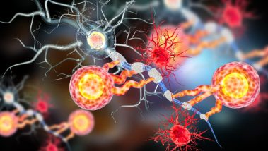 metasztatikus rák gyógyítható