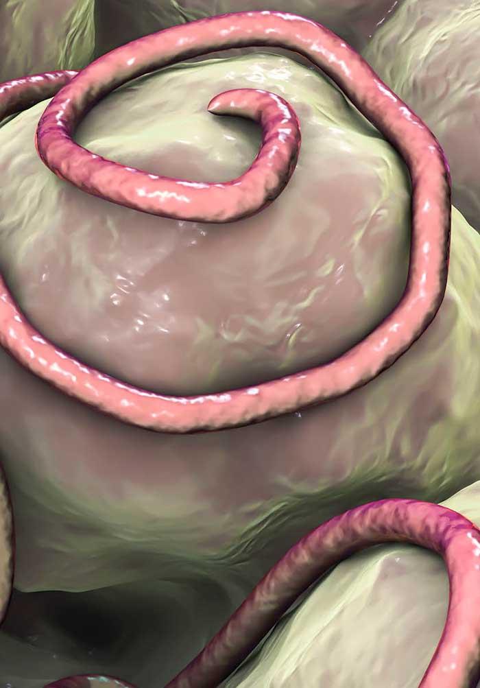 mi a helminthiasis