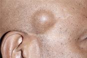 papillómák és atheroma lipoma óvszerek eltávolítása