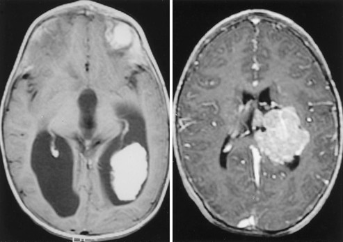 choroid papilloma tumor