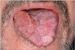 papillomavírus szájnyelv)