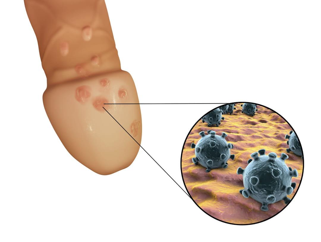 papillomavírus mst homme